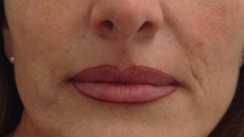 Trucco semipermanente alle labbra Bergamo - dopo- web